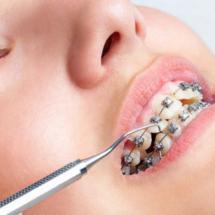 ortodoncja-1-e1473165436630-450x320